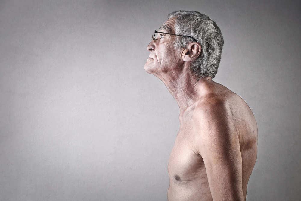La cifosis, un problema de salud que debemos tratar de evitar