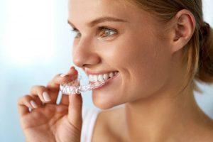 Nuevos tipos de ortodoncia adaptados a todas las necesidades