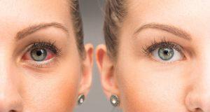 El síndrome del ojo seco
