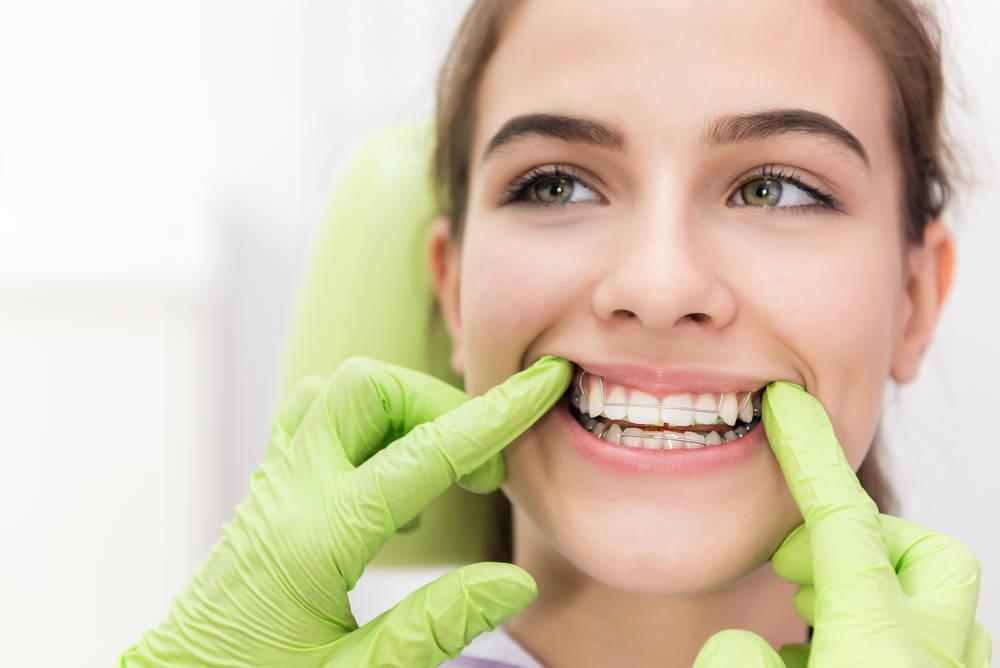 Carillas dentales, una acertada decisión