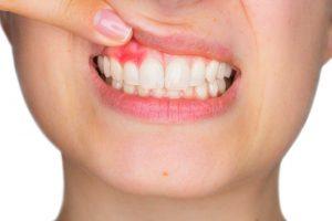 Problemas dentales entre los jóvenes españoles: una más que triste realidad
